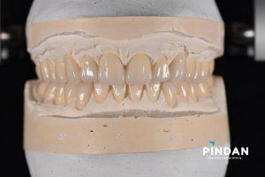 diagnostic dental waxup
