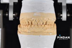 diagnostic waxup planning dental