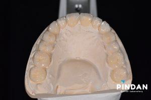 dental waxup 2