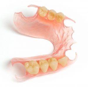 flexible valplast partial denture