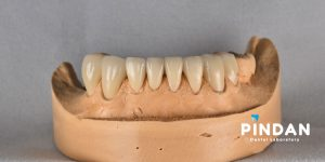 zirconia crowns 6