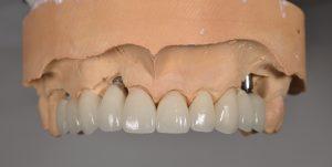 implant restorations