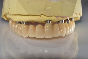 all on 4 hyrbid dental prosthetists