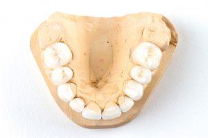 crowns dental