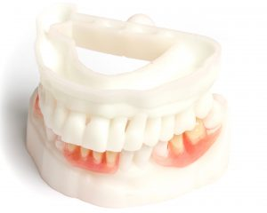 partial denture and 3d printed models