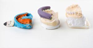 dental impressions and models at dental lab