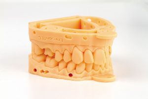 3d printed dental models