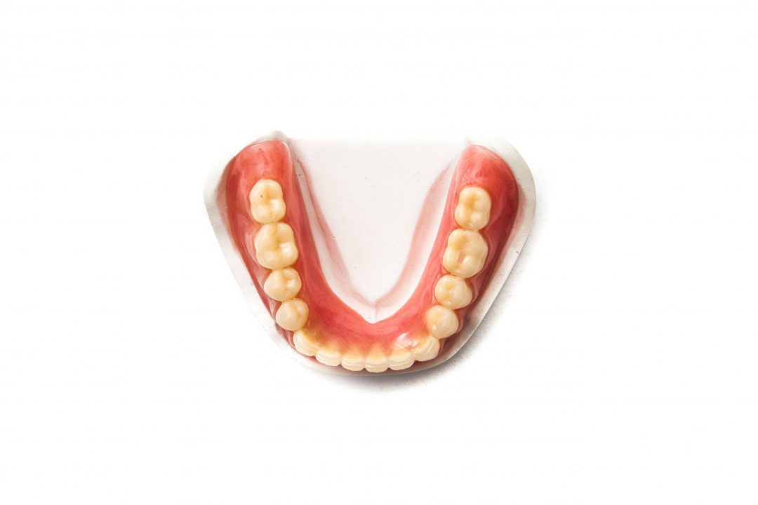 occlusal view denture