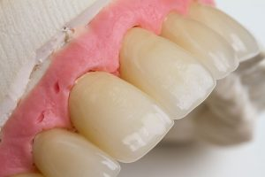 emax crowns layered