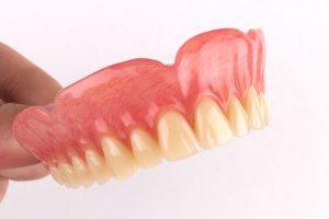 full upper denture 4
