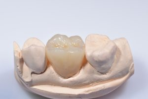 ultra translucent zirconia dental crown