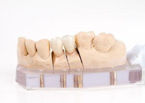 dental crown & bridges