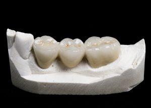 porcelain fused to zirconia