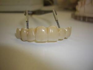 upper denture 6